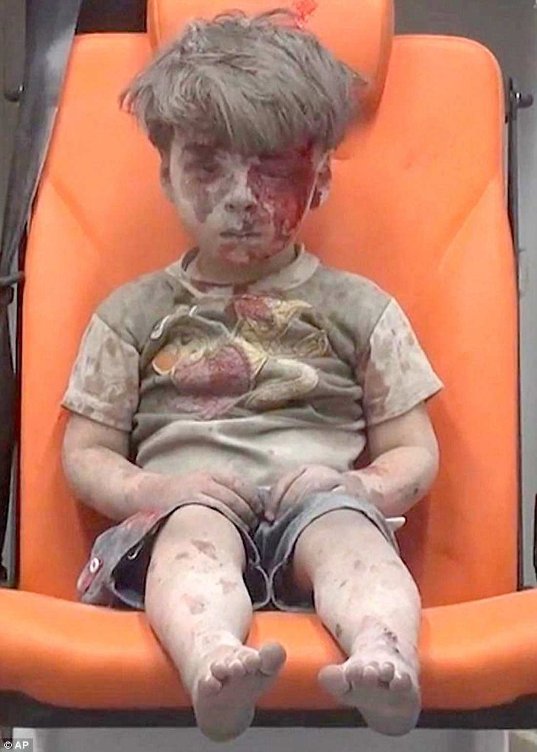 Sobering photo of Syrian boy rescued from a bombed apartment building